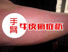 手臂牛皮癣症状.jpg